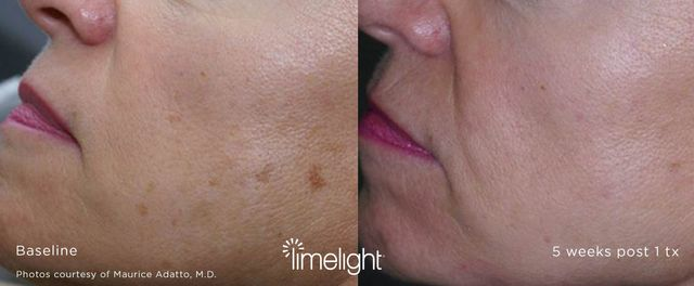 age spots sun spots pigmented lesions removal in charlotte