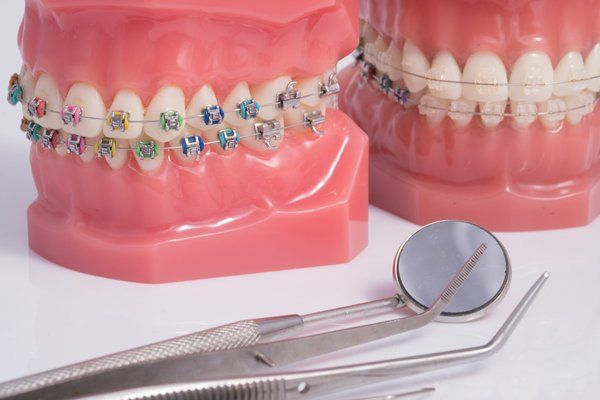 dente con impianto
