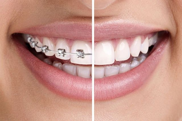 before and after braces taken off