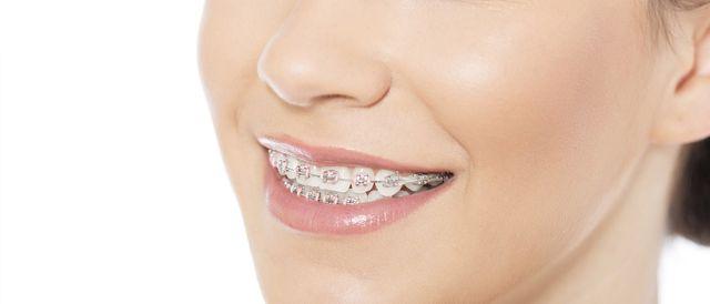 lady with braces