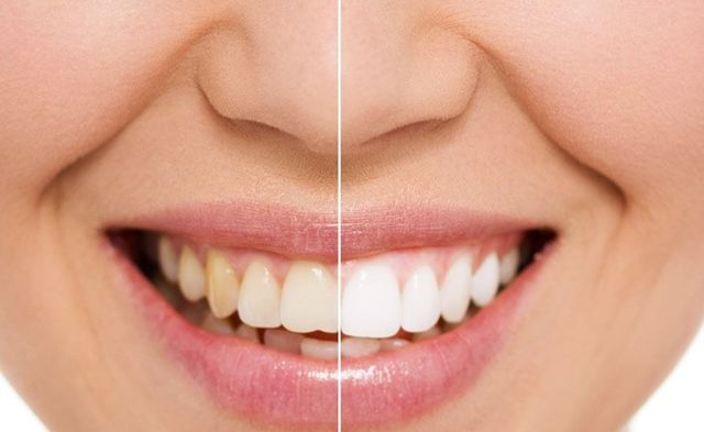lady with white teeth before and after