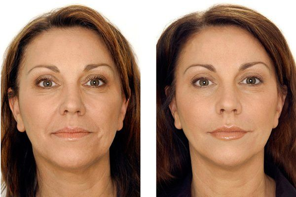 Wrinkle relaxing injections | Melbourne, Vic | Rejuvenation