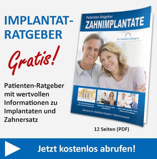 Implantat-Ratgeber Bad Kreuznach