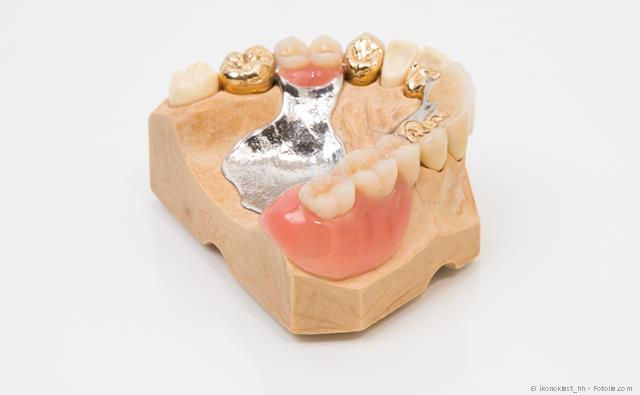 Wenn viele Zähne fehlen, können mit Implantaten  herausnehmbare Teilprothesen vermieden werden.