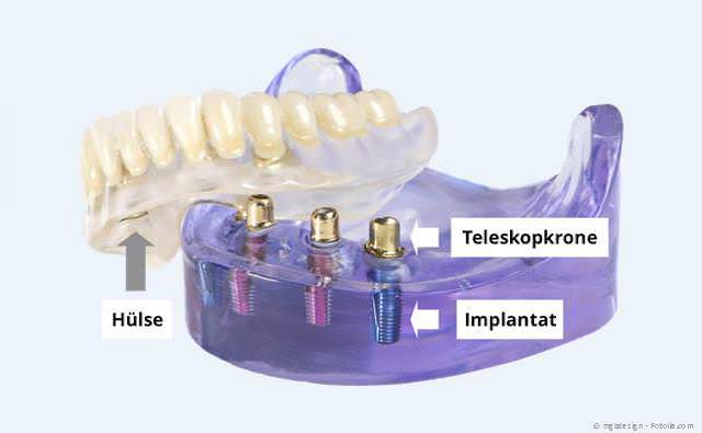 Mit nur wenigen Implantaten können Totalprothesen wieder einen sicheren Halt bekommen.