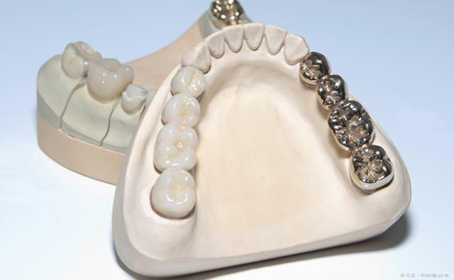 Zahnbrücken aus Keramik (links) und aus Metall (rechts)