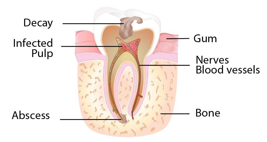 how to avoid root canal treatment naturally