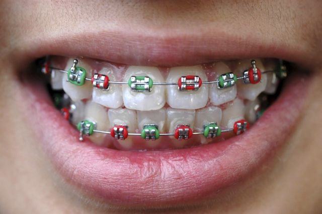 Colorful Braces