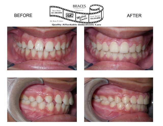 Before and After Dentistry Work