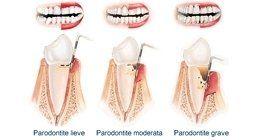 Parodontite, Paradontologia