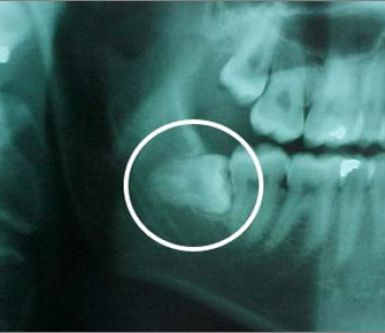 panoramica dei denti