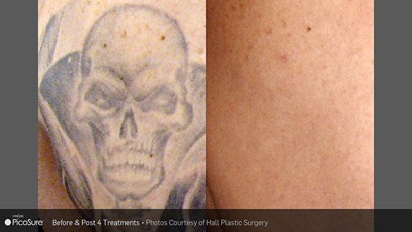 Before and after photo from four laser tattoo removal treatments