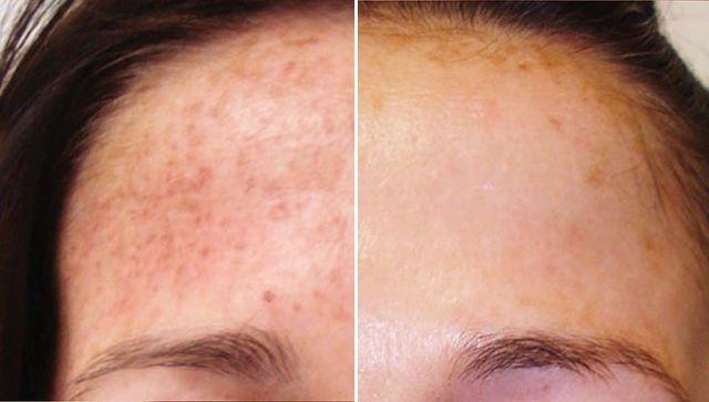 IPL Laser Hair Removal & Skin Rejuvenation | The Beauty
