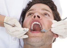 chirurgia-mucogengivale