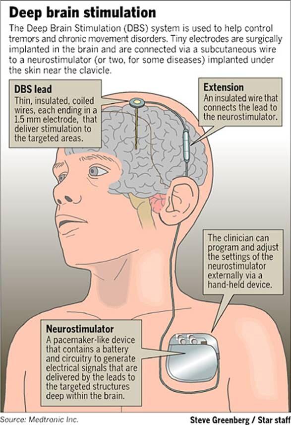 Deep Brain Stimulation — Neurosurgical Associates in San Antonio, P.A.