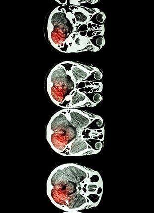 Skull X-ray — Neurosurgical Associates in San Antonio, P.A.