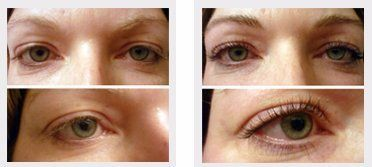 Eyelash lifting and tinting