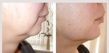 Before and after 5 Radio Frequency skin tightening and lifting treatment sessions