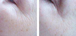 Line and wrinkle reduction treatment