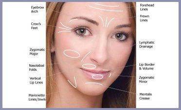 Benefits of the Perfector non surgical face lift