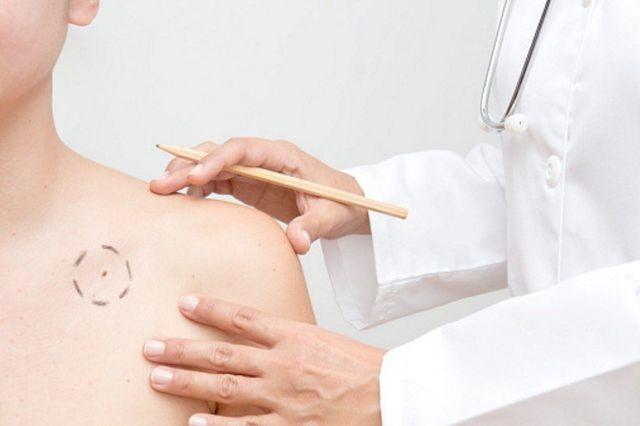 Dermatologo controllo nei Ambulatorio Morego Genova