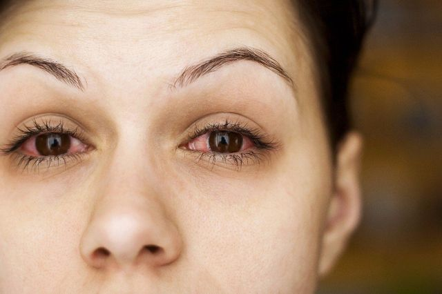Eye Allergy Treatment - San Jose & Santa Clara, CA