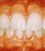 Gum Disease Orchard Park, NY