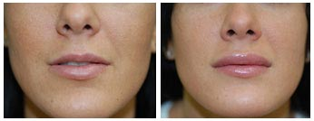 Botox Treatments Orchard Park, NY