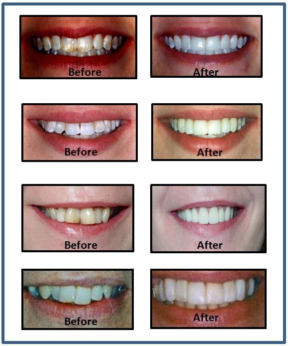 Cosmetic Dentistry Orchard Park, NY