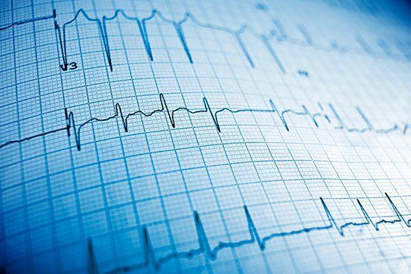 Stretta di un elettrocardiogramma in forma cartacea