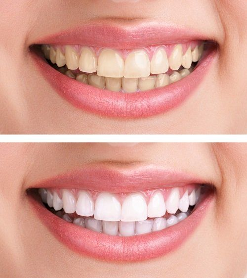 I denti prima e dopo dello sbiancamento