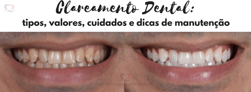 6 Mitos E Verdades Sobre Clareamento Dental