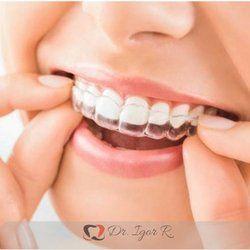 Dentista Em Fortaleza Odontologia Estetica Dr Igor R Dr Bill Rola