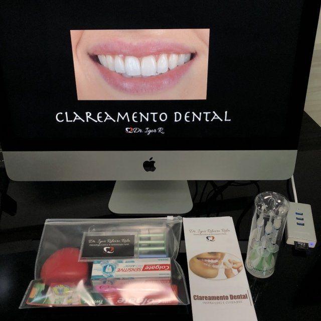 Clareamento Dental Em Fortaleza O Que Voce Precisa Saber