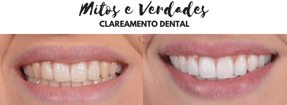 6 Mitos E Verdades Sobre Clareamento Dental