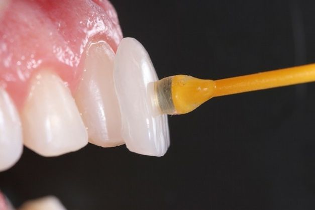 Image result for dental lenses
