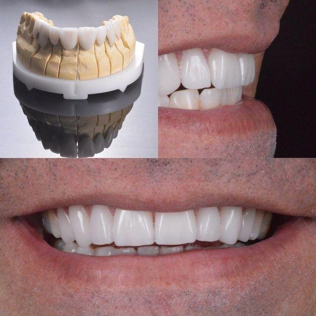 5d3026288 paciente com tratamento de lentes de contato dental natural
