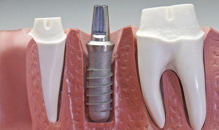 fitting implants