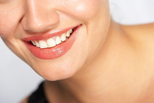 white teeth smiling