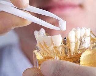 Implantologia Milano