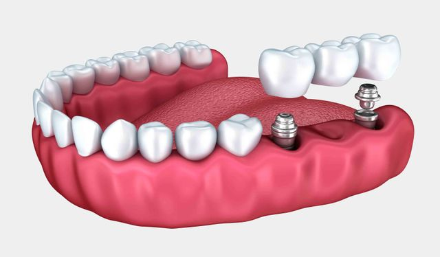 Our dental implants in Wentworth Falls