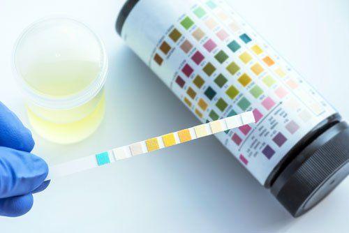 Il nostro Laboratorio di Analisi è a disposizione per analisi del sangue  che possono essere effettuate in sede dal Lunedì al Sabato senza appuntamento