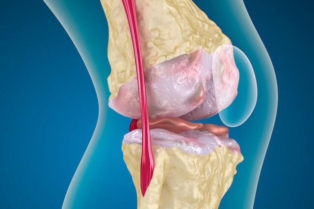 artróza a osteoartróza