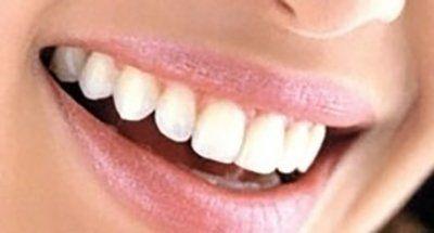 primo piano di denti bianchi