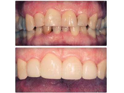 Odontoiatria cosmetica