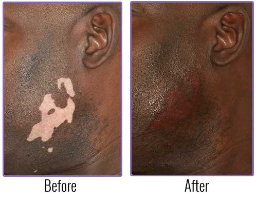 Medical Tattooing/ Re-pigmentation