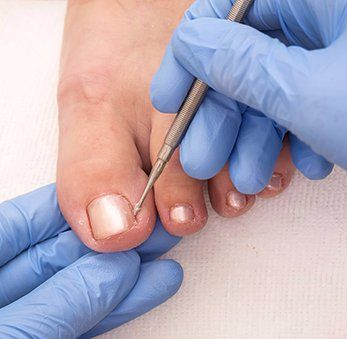 Doctor examines the foot nail before the treatment