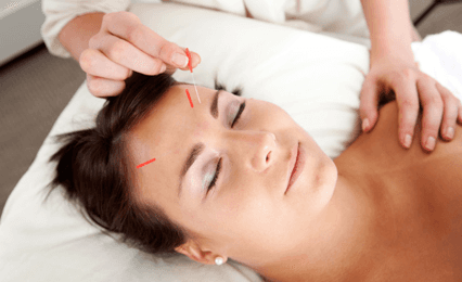 A lady having acupuncture in her forehead