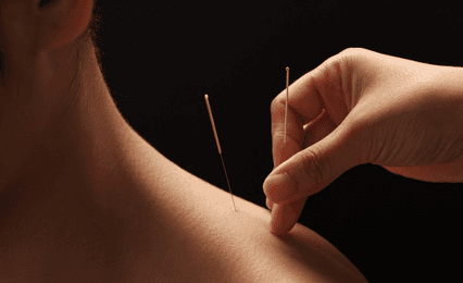 A close up of acupuncture needles going into a shoulder