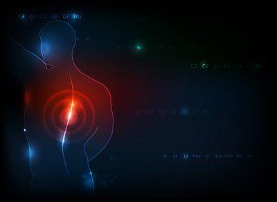 disegno stilizzato di colonna vertebrale con infiammazione